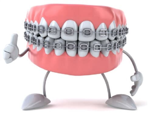 our team can improve your smile by shifting the position of your teeth using braces the brackets and wires of braces will apply gentle pressure to move